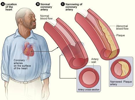 Cholesterol lowering measures