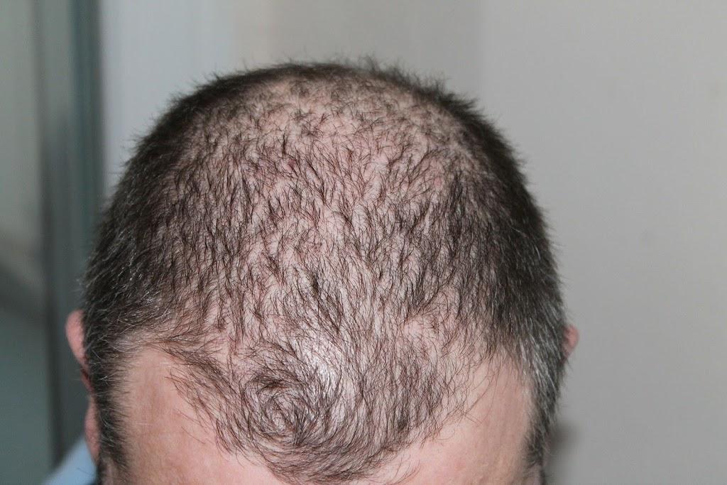 hair 248050 1920 2B 25281 2529